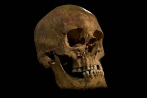 Richard III's skull. http://www2.le.ac.uk/study/why-us/discoveries/leading-the-search-for-richard-iii